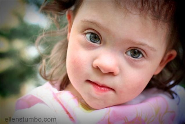 A closer look at the physical characteristics of Down syndrome - Ellen  Stumbo