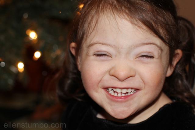 Down syndrome and suffering